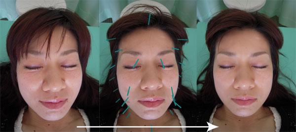 治療 効果 針 帯状疱疹後神経痛(ヘルペス)に鍼灸治療は効果がありますか?